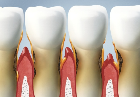 Kada vertėtų kreiptis į periodontologą?